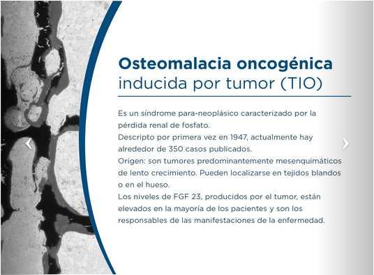 Osteomalacia oncogénica inducida por tumor (TIO)